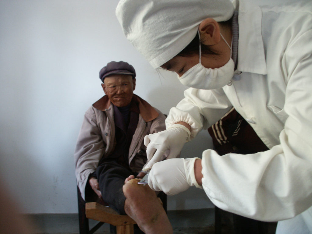 Sister doing wound care to a person affected by leprosy in Shiping Yunnan Province
