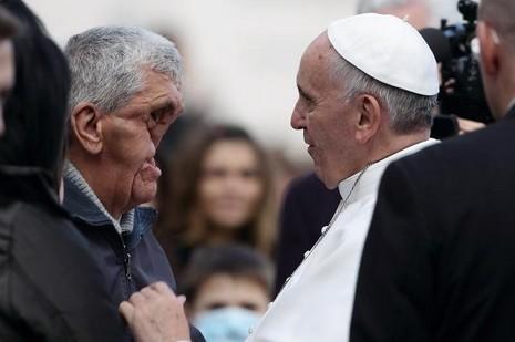 患纖維瘤病令身體長滿疱的男子回憶教宗親吻一刻